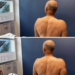 Neck Pain Treatment